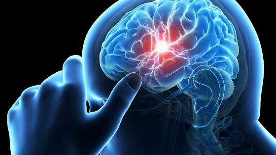 Waspadai Stroke, Serangan Otak yang Tiba-Tiba